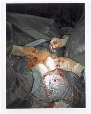 Closing the Wound II, 2006  By Damien Hirst