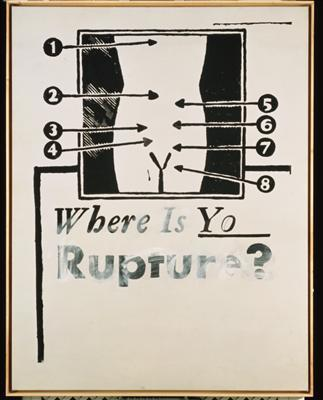 Where is Your Rupture?, 1961